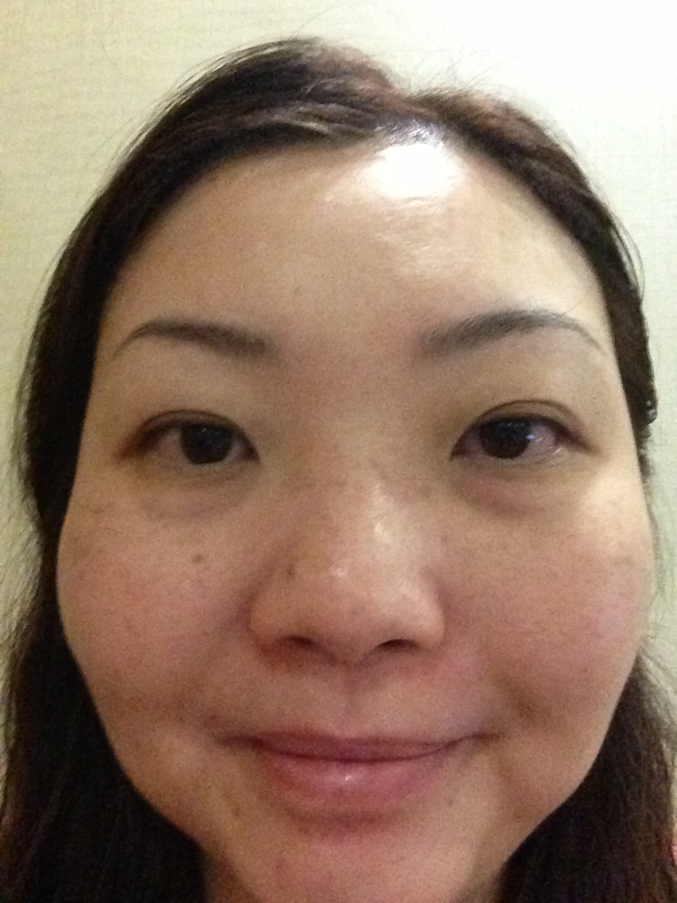 My face before the Mask. There is melasma on the right and left cheek